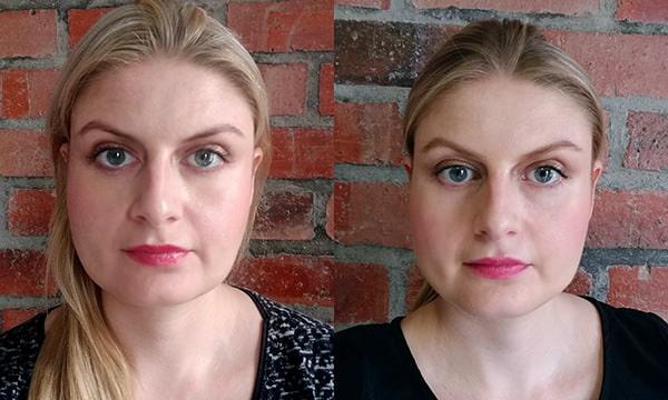 результат проведения массажа до и после