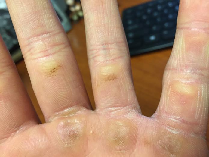мозоли на пальцах