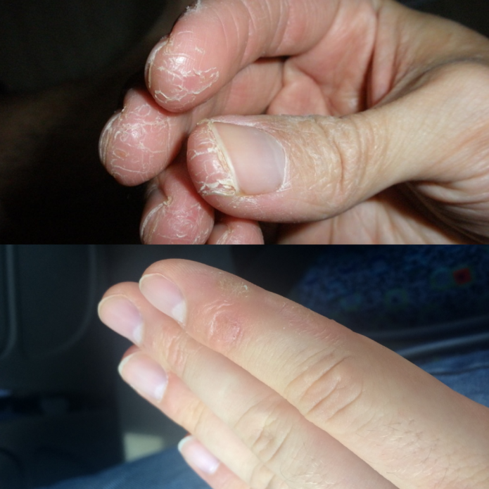 Облезает кожа около ногтей