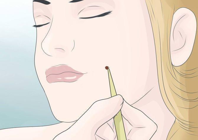 Как сделать чтобы были ямочки 231