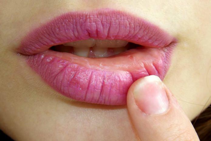 Болят губы от трещин