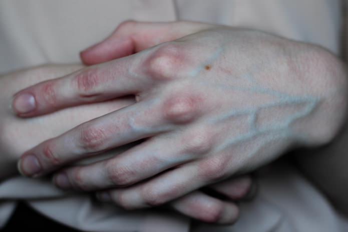 Почему вены на руках сильно выпирают?