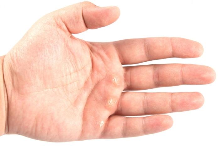 Мазь для суставной мозоли препарат эдма для суставов